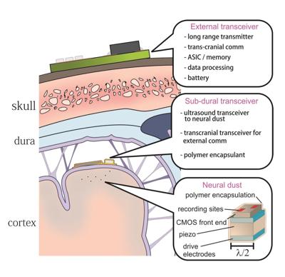 neural-dust